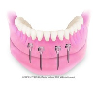 Mini Dental  Implants Canton OH